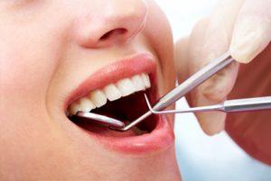 Going For Dental Implants